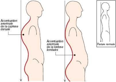 La douleur aux cous et sous lomoplate de la droite
